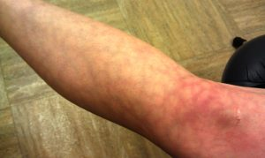 Pictures of Livedo Reticularis