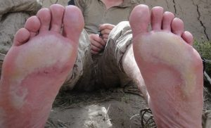 Pictures of Trench Foot