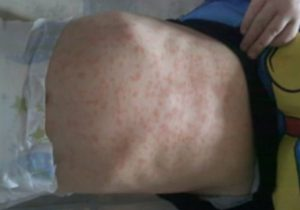Pictures of Amoxicillin Rash
