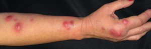 Images of Lymphangitis