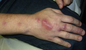 Photos of Lymphangitis