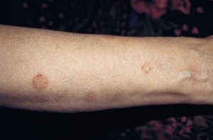 Image of Nummular Dermatitis