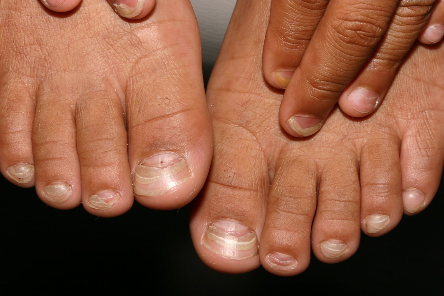 Onychomadesis - Causes, Pictures and Treatment | HealthDiseases.Org