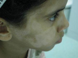 Picture of Pityriasis Alba