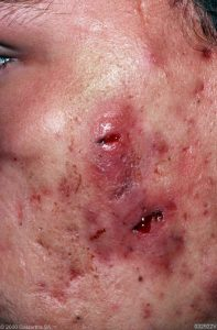 Photo of Acne Conglobata