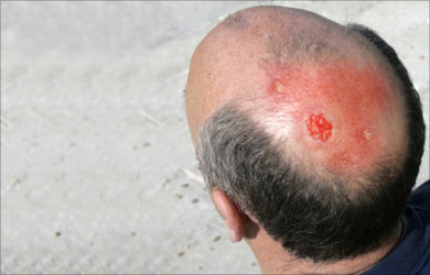 Actinic keratosis - Pictures, Causes, FAQs and Treatment