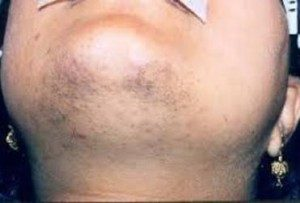 Picture of Hirsutism