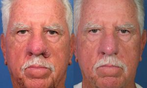 Rhinophyma Correction