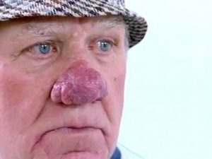 Photos of Rhinophyma