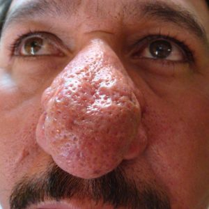 Picture of Rhinophyma