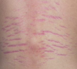 Photo of Bartonella Rash
