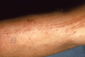 Photo of Poison Sumac Rash
