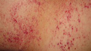 Picture of Petechiae on Arms