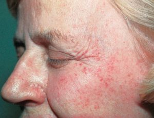 Image of Petechiae on Face